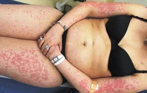 maculopapular rash on upper lower limbs