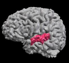 Affected part of the brain in the schizotypal personality disorder