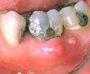 Periodontal Abscess image