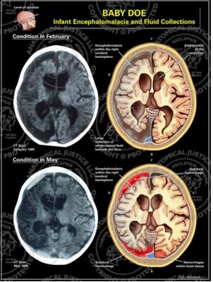 Progression of Encephalomalacia