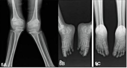 Rotentogenographic description of Morquio syndrome