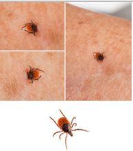 Bug Bites that Blister