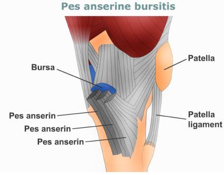 Pes-anserinus-bursitis