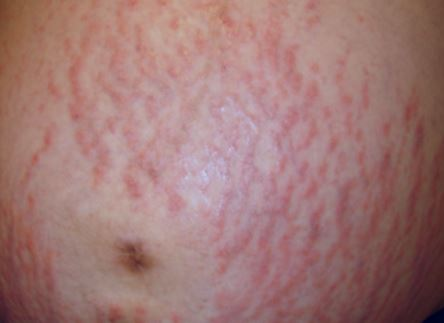 Puppp Rash Pictures Symptoms Causes Treatment What Is