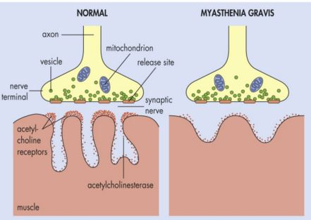 Changes of neuromuscular junction in Mysthenia Gravis