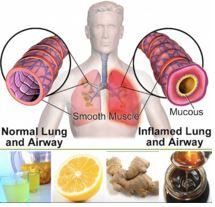 Chest congestion and remedies