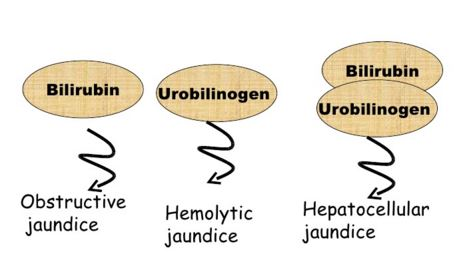 Clinical significance of Urobilinogen in urine