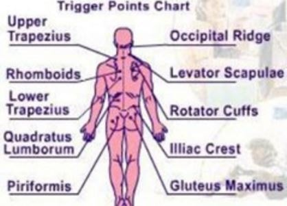 Trigger Point Injections Side Effects Complications