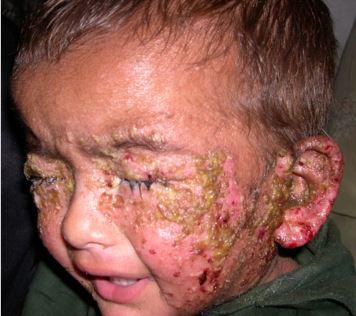 Impetigo Pictures Treatment What Is Symptoms Contagious