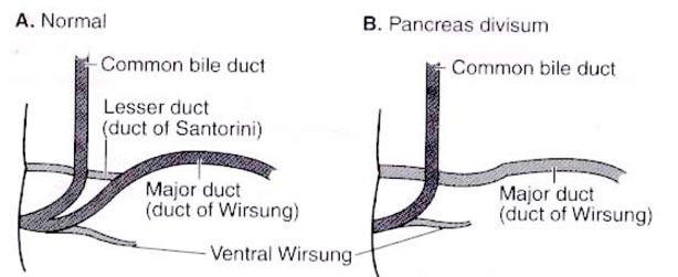 pancreas-divisum