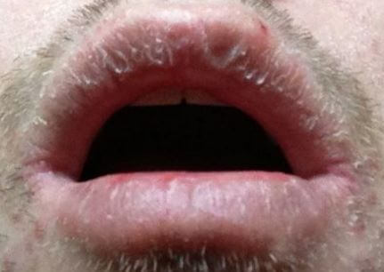 Crusty Lips How To Get Rid Symptoms Causes Remedies