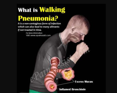 Walking Pneumonia - Symptoms, Contagious, Signs, What Is?, Treatment