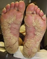 Hyperkeratosis of legs