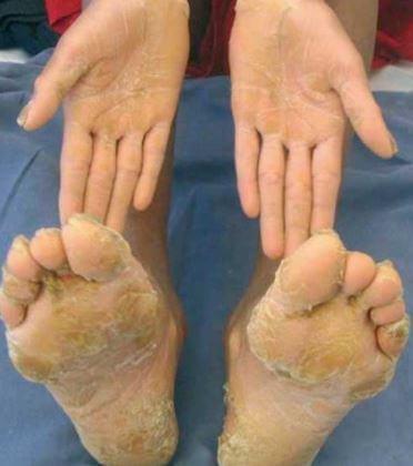epidermolytic-hyperkeratosis-images-4