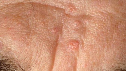 Sebaceous Hyperplasia images