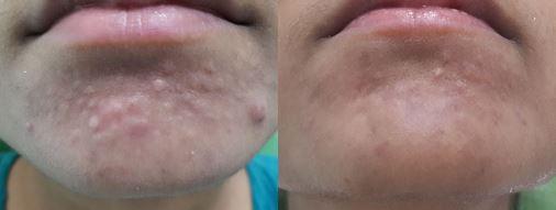 Sebaceous Hyperplasia pics 5