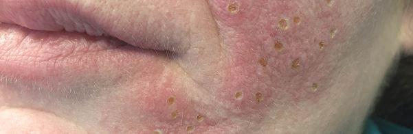 Sebaceous Hyperplasia pics 6
