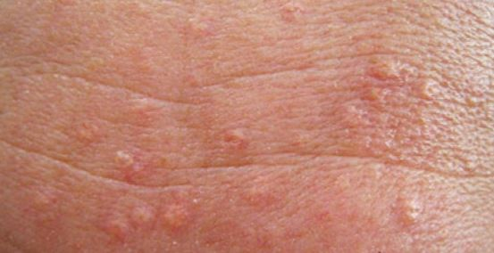 Sebaceous Hyperplasia pictures
